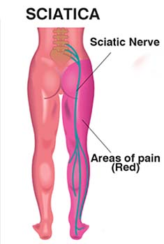 Massage Sciatica