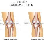 Arthritis: Can Chiropractic Care Help?